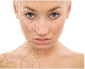 Inconvemientes de la piel reseca