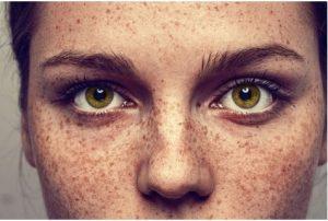 Consejos para combatir las manchas en la piel