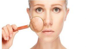Causas de las manchas en la piel
