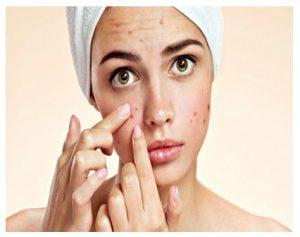 Beneficios de los tratamientos para el acne
